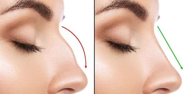 All About Rhinoplasty That One Needs to Know